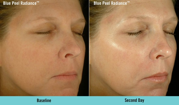 Obagi Blue Peel Radiance - Before and after