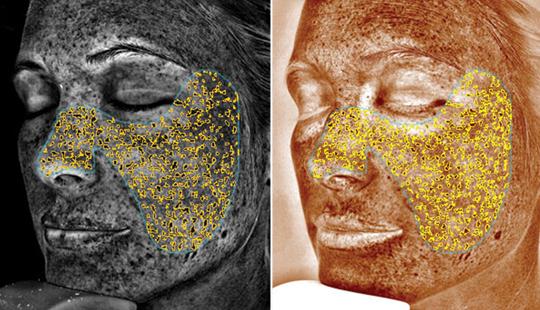 Pigmentation - sun damaged skin - Visia