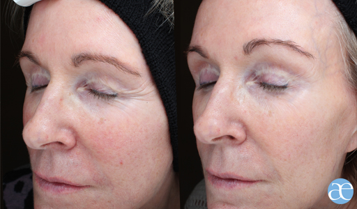 Collagen Boost Before After