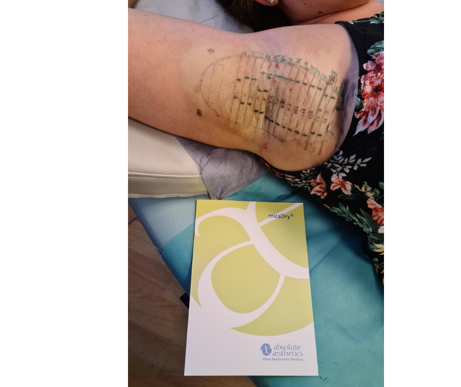 miraDry temporary tattoo, this is used as a guide when the treatment is being done