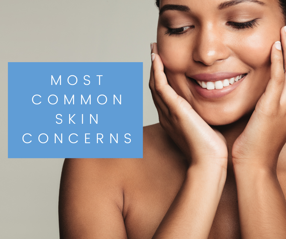 Most Common Skin Concerns